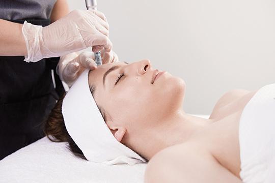 Microneedling wird auf der Stirn angewendet
