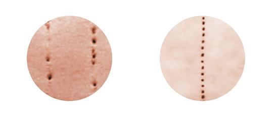 Herkömmliches Microneedling vs. Dermalogica® Microneedling
